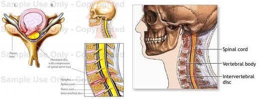 cancerul la coloana vertebrala simptome