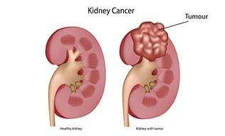 cancerul renal simptome