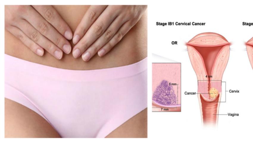cancer malign hodgkin