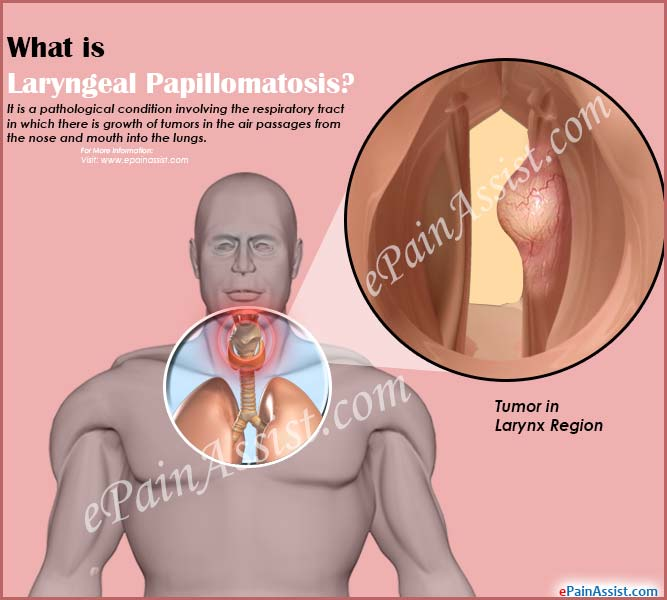 cause of laryngeal papillomas endometrial cancer and lynch syndrome