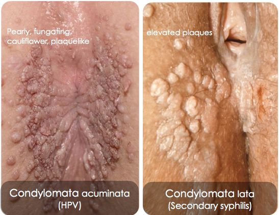 cancer de pancreas durata de viata paraziti ve stolici u deti
