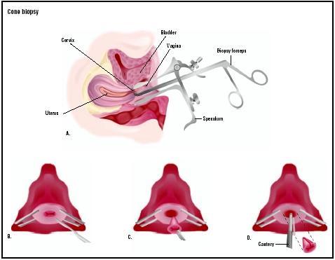 cervical cancer biopsy procedure