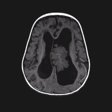 choroid plexus papilloma medscape hx of renal cancer icd 10