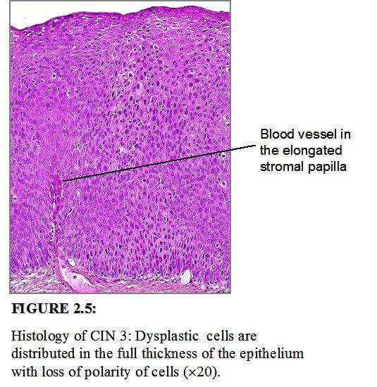 cin 2 cervical cancer