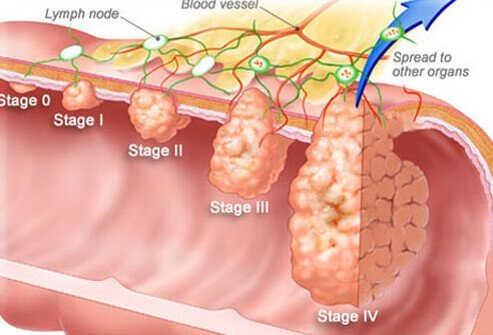 colorectal cancer blood in stool hpv and cervical cancer vaccine