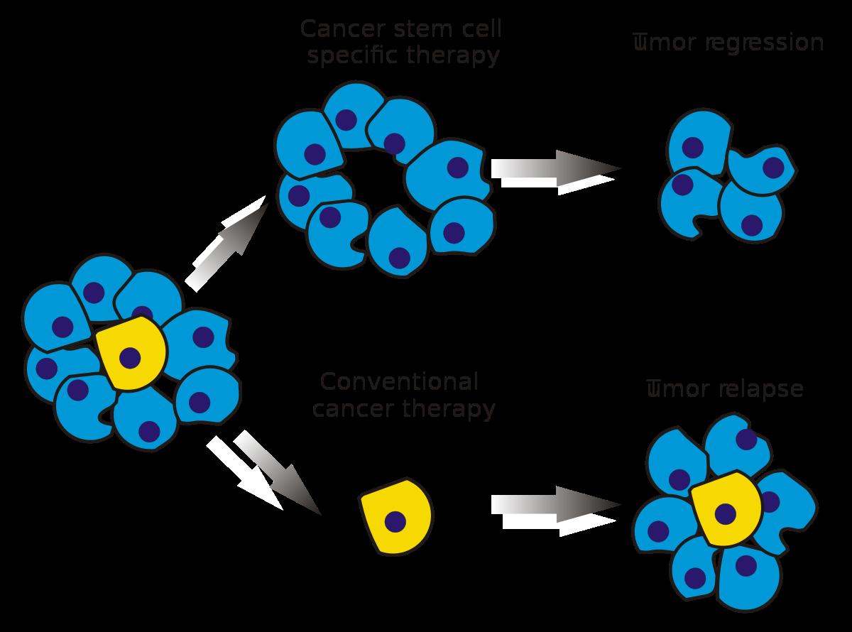 colorectal cancer vertaling eyelid wart (papilloma)
