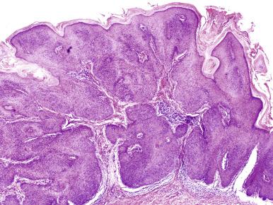 condyloma acuminata histo o que que e oxiurus