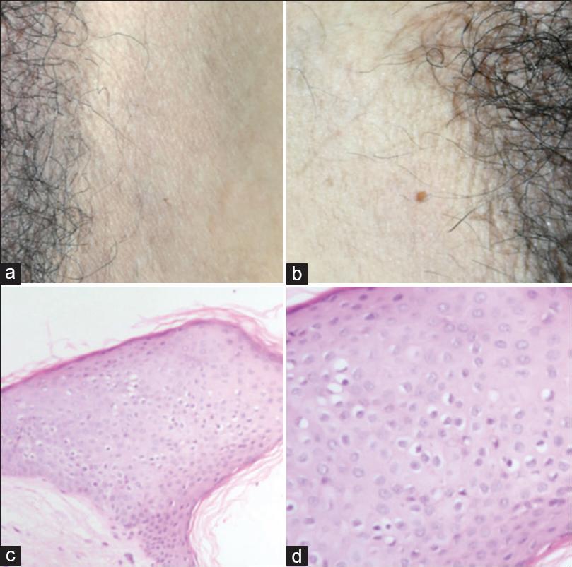 condyloma acuminatum newborn cancerul gastric plan de ingrijire
