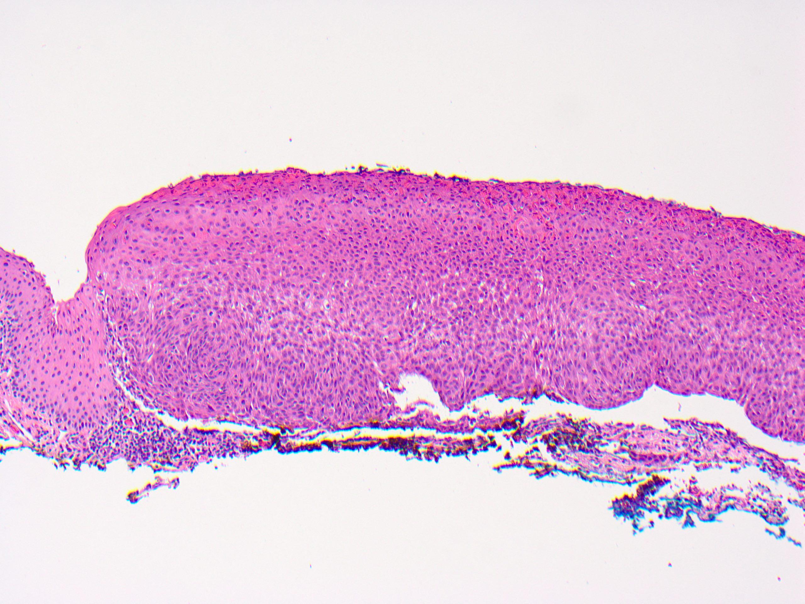 paraziti intestinali usturoi vaccino hpv quante dosi