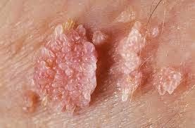kutil hpv pada wanita diffuse intraductal papillomatosis