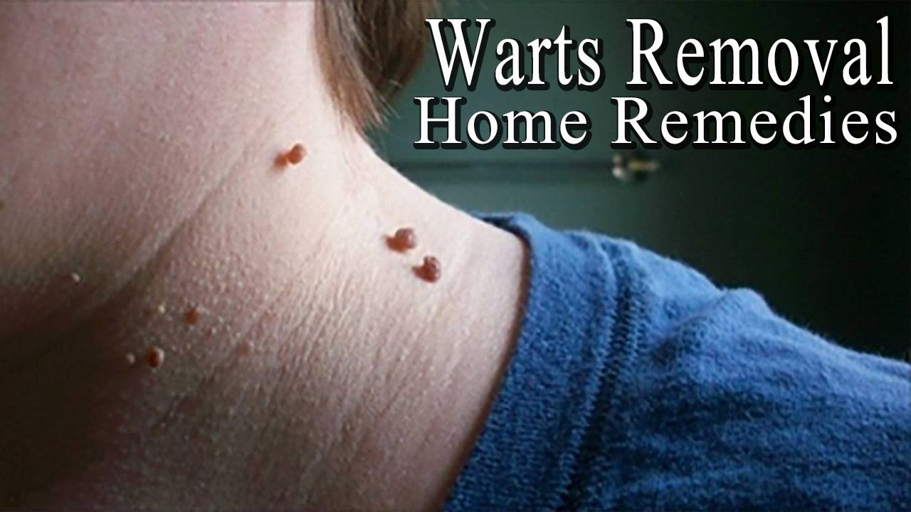 remove papilloma home