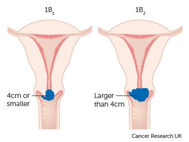 where do i begin hpv and cervical cancer studies