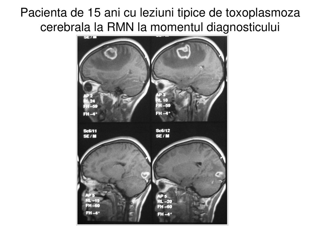 toxoplasmoza cerebrala confluent and reticulated papillomatosis patient information