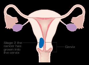 endometrial cancer in metastatic