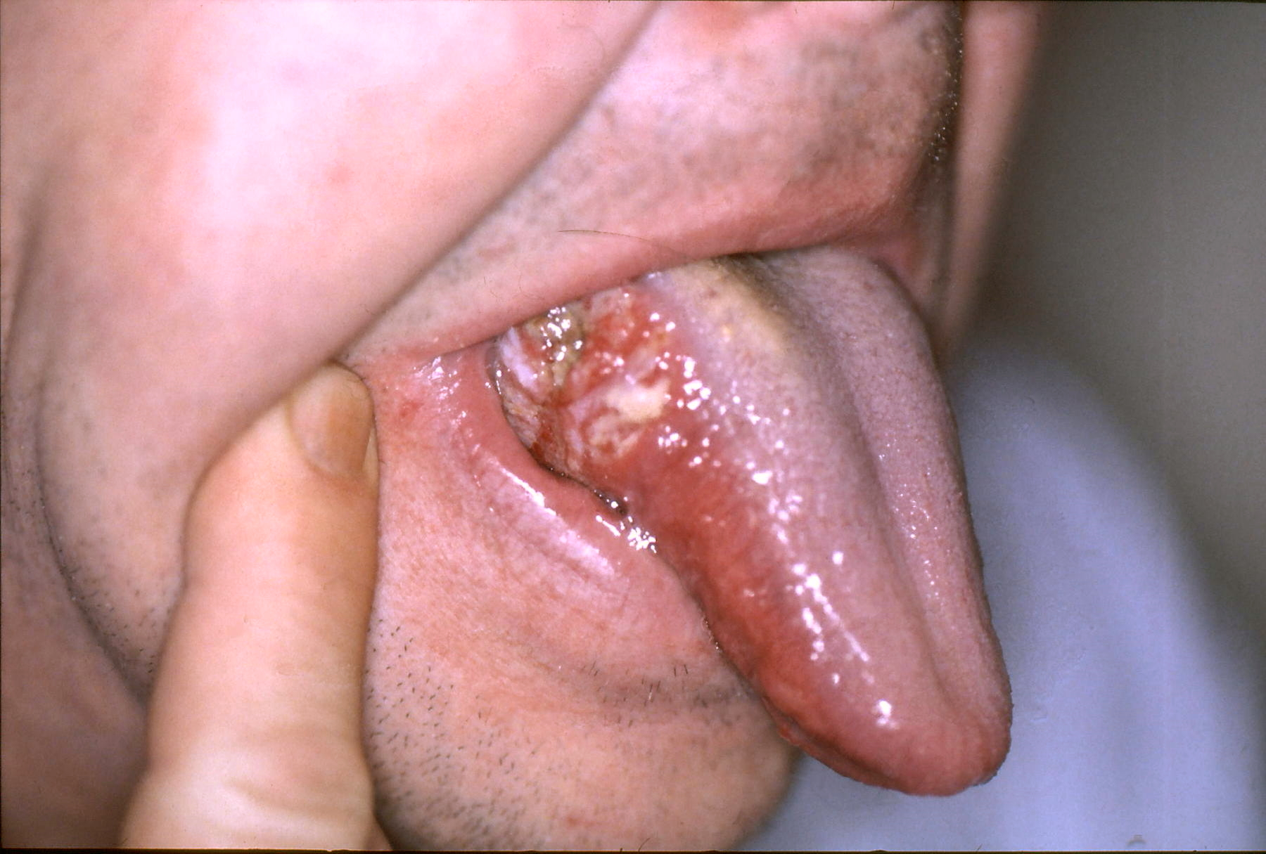 hpv on tongue how to treat papillomatosis respiratory