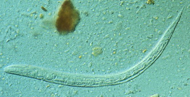 papillomavirus 16 oncoprotein vaccino contro il papilloma virus maschi