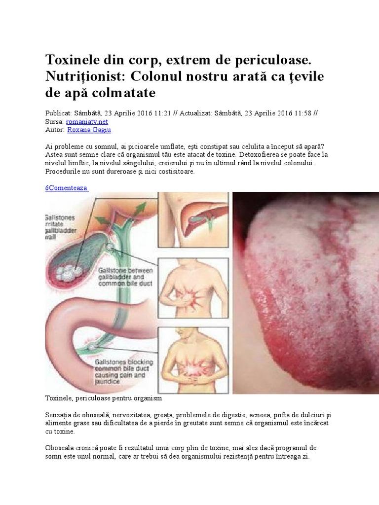 Scapati de toxinele din corp cu ajutorul a 5 campioni in detoxifiere | Revista | EUJUICERS ROMANIA