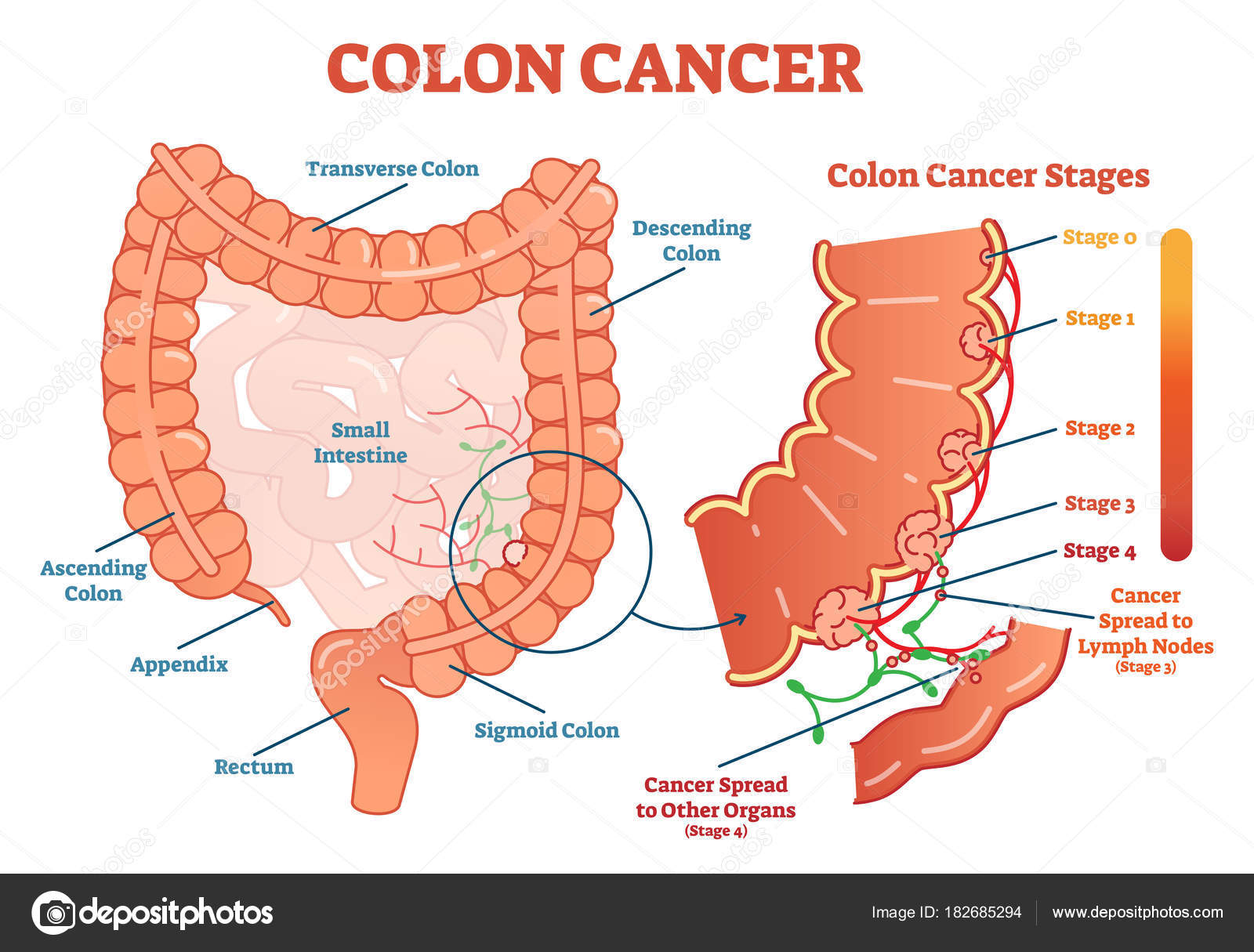 cancer colon fase 4 hpv herpes zoster