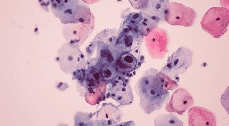 definition of human papilloma virus cancer do colo do utero por hpv