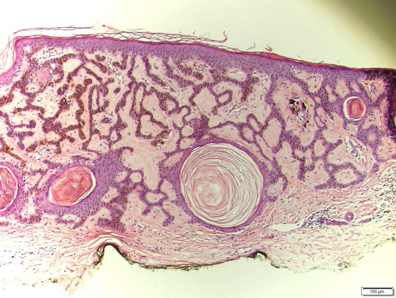 squamous papilloma vs seborrheic keratosis tumore papilloma virus