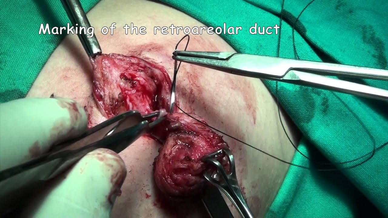 duct papilloma surgery