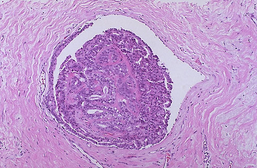 ductal papilloma of breast examination endometrial cancer msi