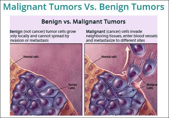 breast cancer benign and malignant renal cancer on pancreas