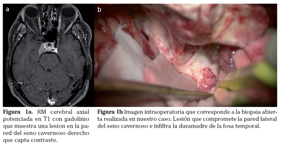 enterobius vermicularis kontil