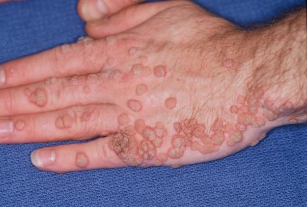diagnosi papilloma virus nelluomo papilloma lip icd 10
