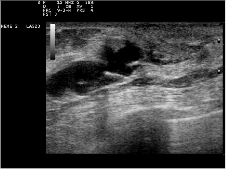 papilloma intraductal imagenes