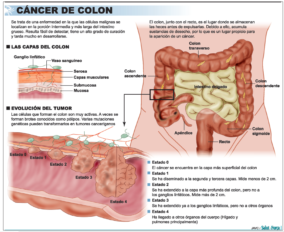cancer de colon heces detoxifiant cu ganoderma pareri