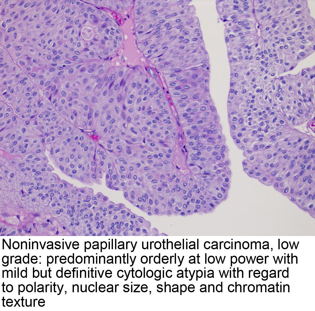 papillary urothelial cell proliferation virus papiloma humano medicamentos