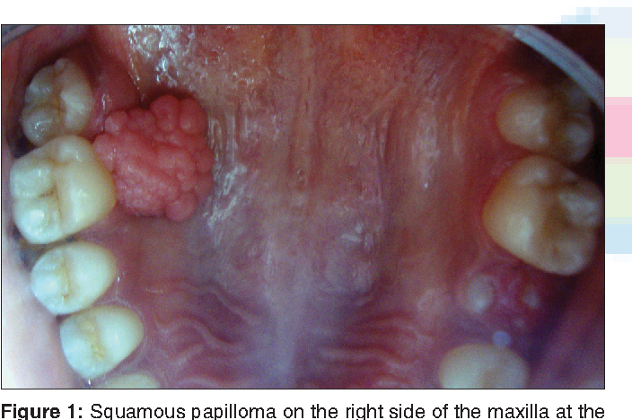 squamous papilloma about