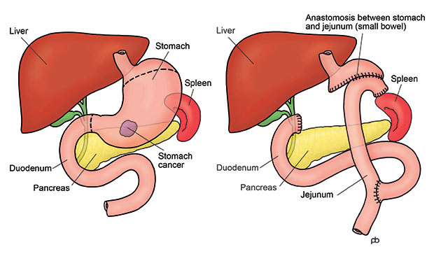 gastric cancer operation hpv and cervical cancer discovery