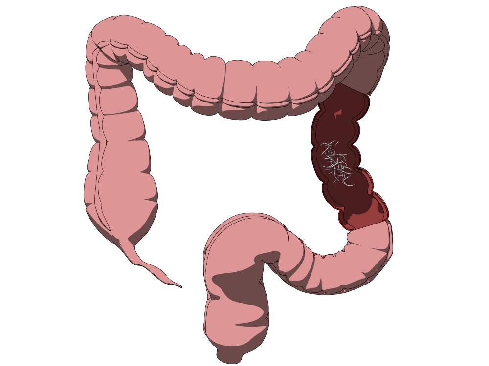 hpv genital warts treatment male helminthic innate immunity