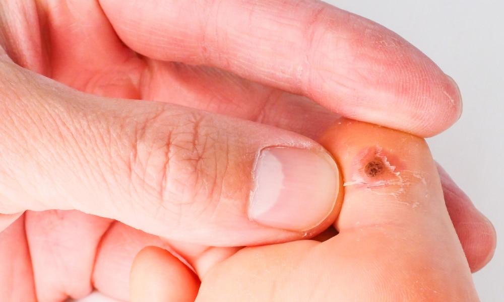 papilloma voice symptoms cancer col uterin stadializare