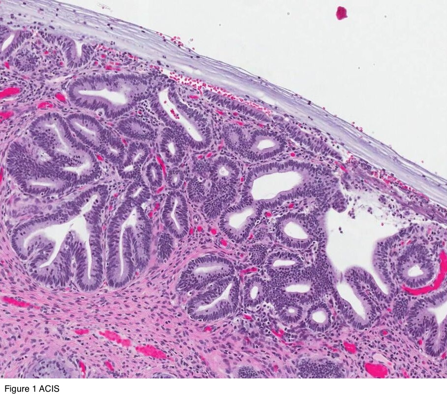 cervical cancer pathology warts treatment on feet