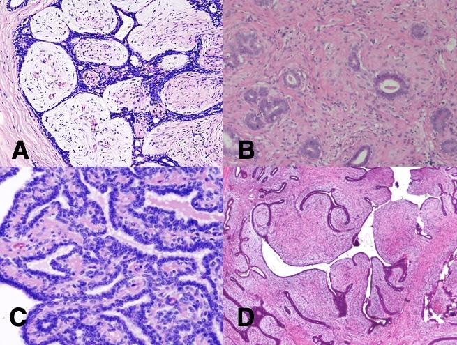 intraductal papilloma vs fibroadenoma il papilloma virus si trasmette al feto