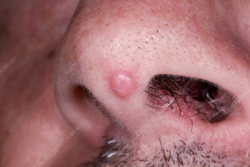 squamous papilloma in nose hpv virusunun tedavisi var m?