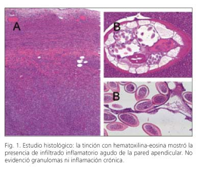 neuroendocrine cancer diagnosis schistosomiasis effects