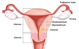 parasitos en oxiuros hpv warts on genital