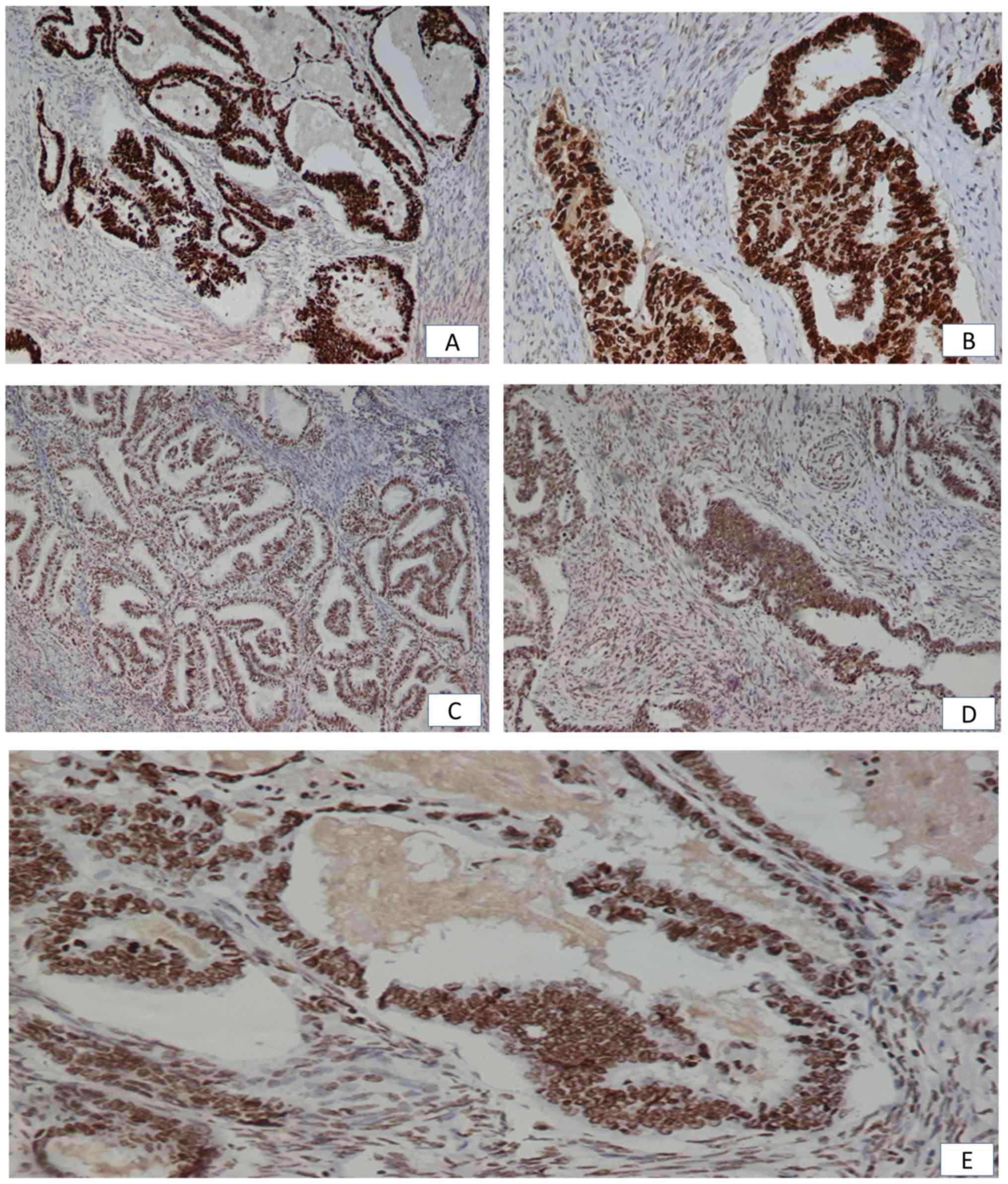 endometrial cancer p53