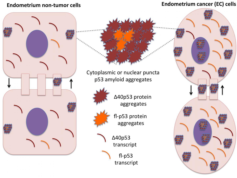 endometrial cancer p53 papilloma orecchio umano