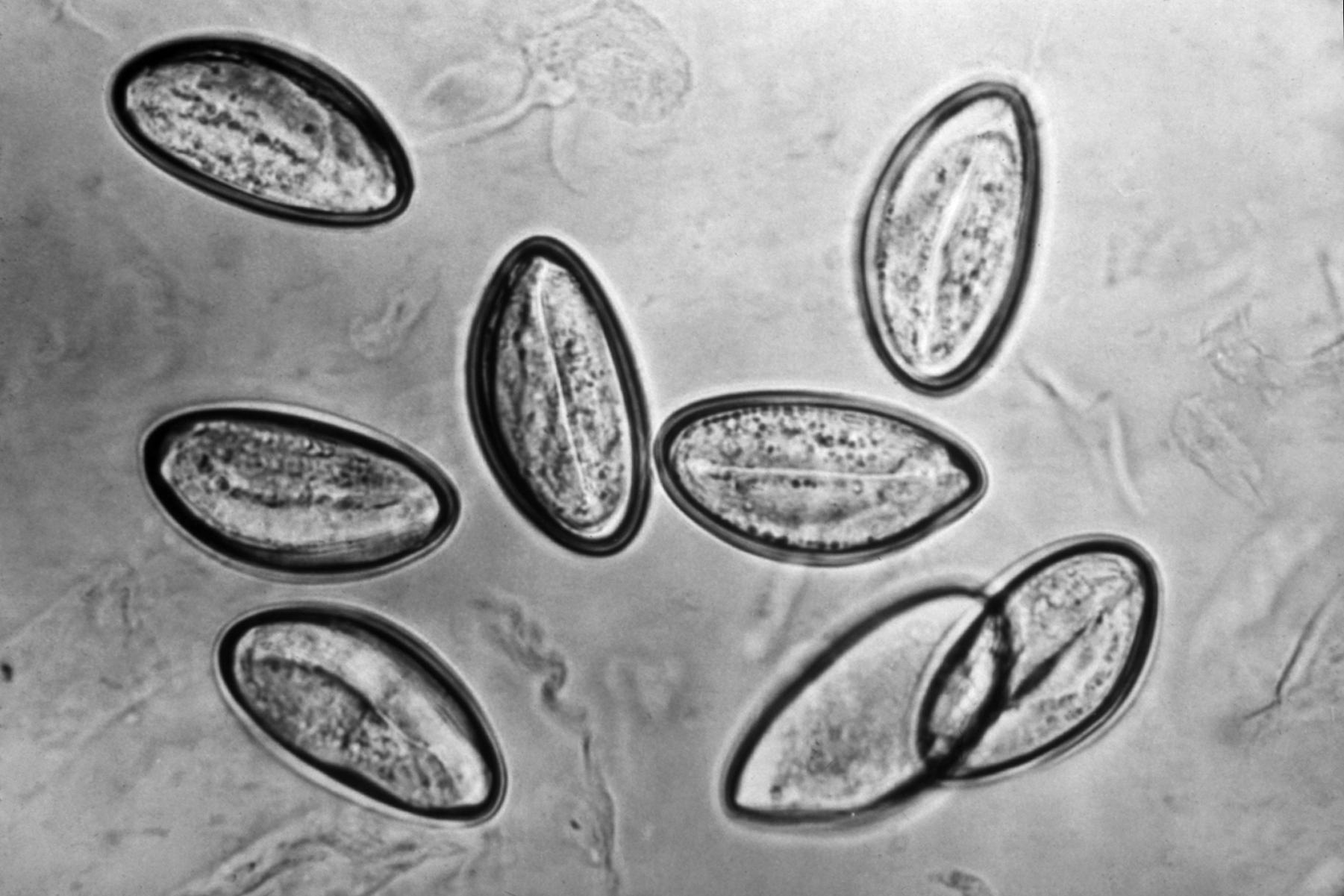 enterobius vermicularis larvas