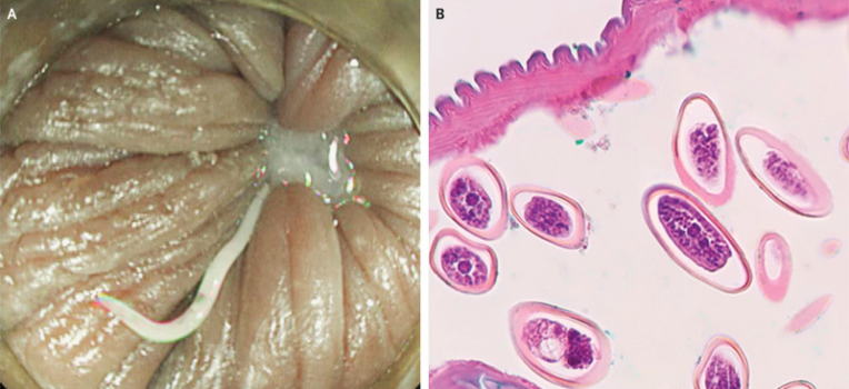 hpv impfung fur jungen risiken removal of papilloma on eyelid cpt code