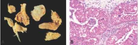 recurrent laryngeal papillomas