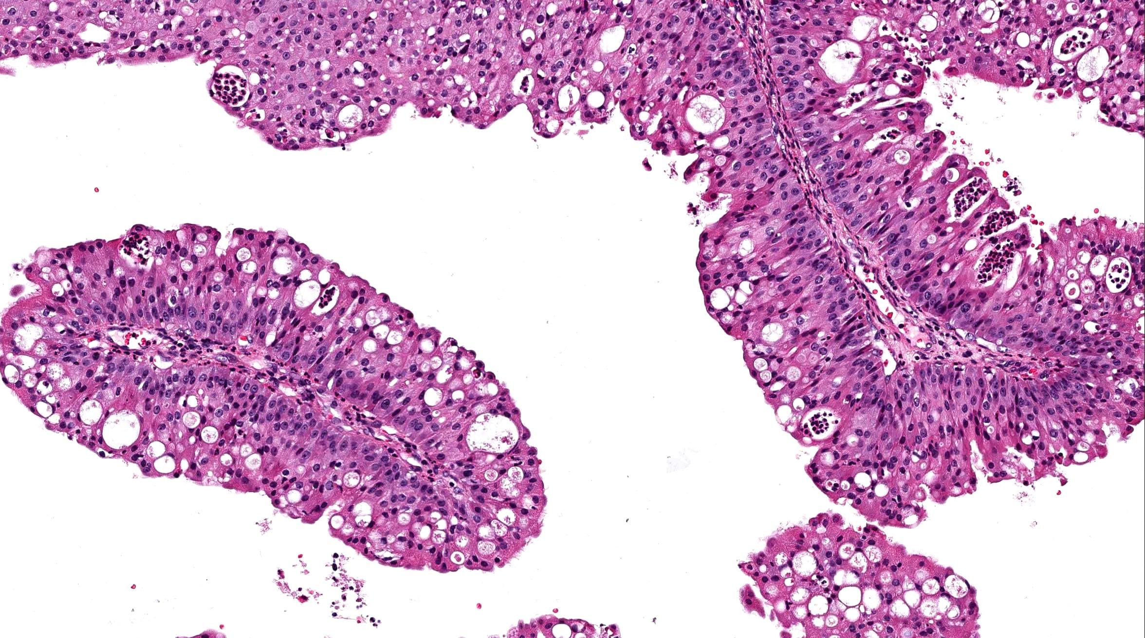 papillary thyroid cancer workup human papillomavirus (hpv) type 6