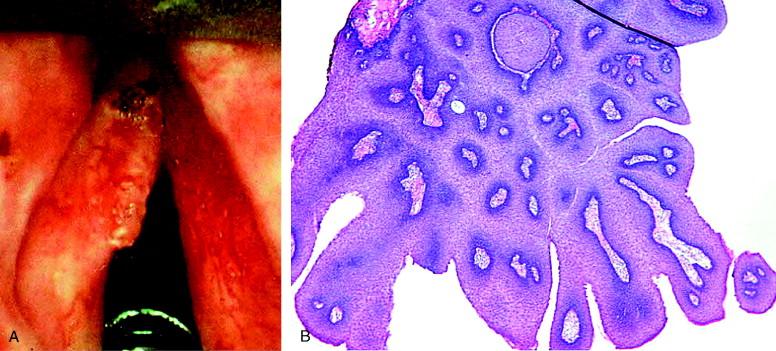 vestibular papillomatosis swollen