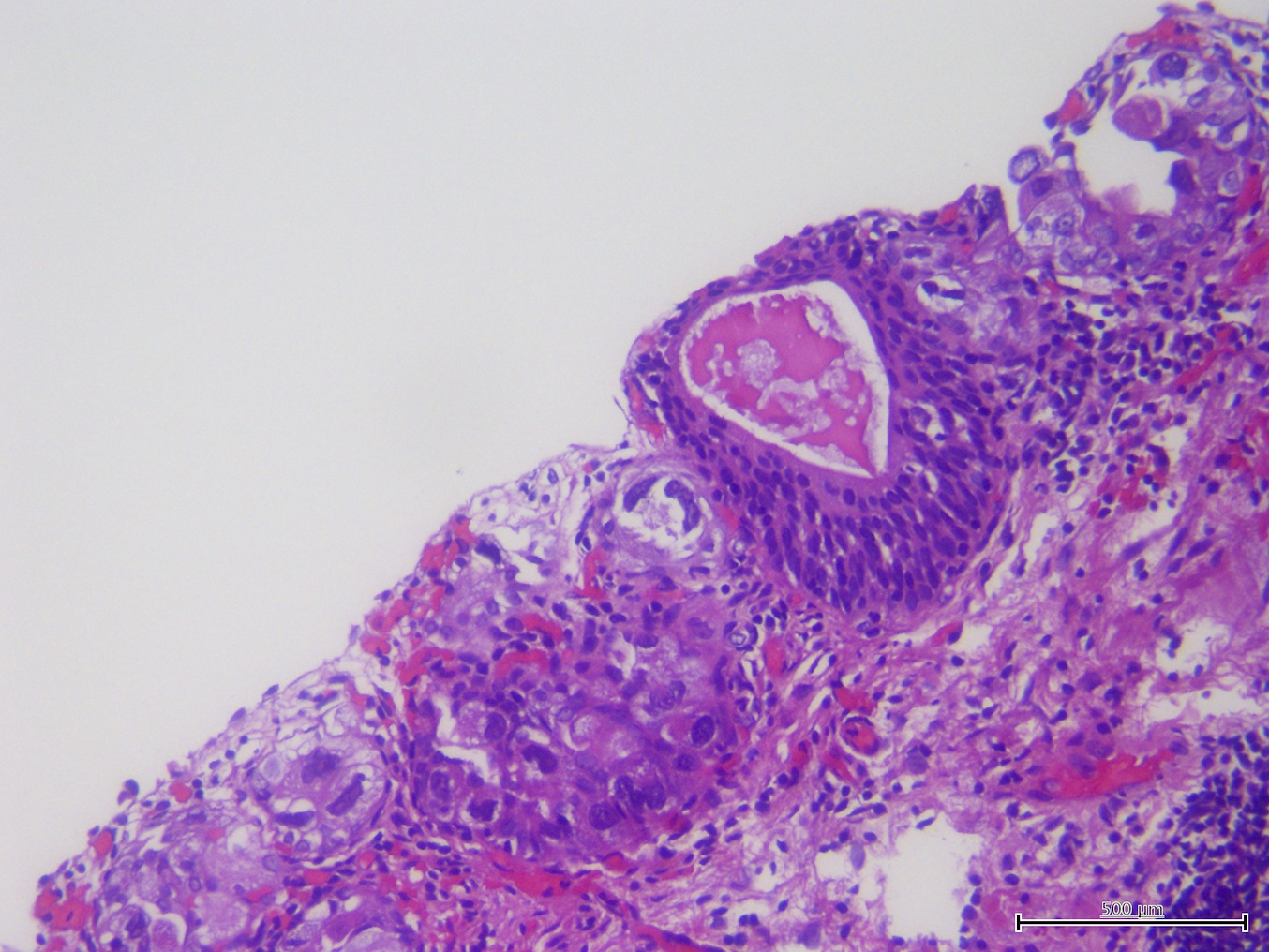 papillary urothelial carcinoma patho outline oxiuros lavar ropa