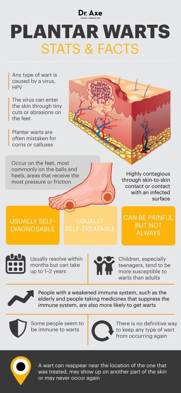 Vitiligine: 9 rimedi naturali per curarla